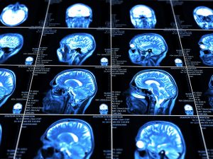 Cohen Veterans Bioscience and American College Of Radiology Launch First of Its Kind Imaging Library for Traumatic Brain Injury